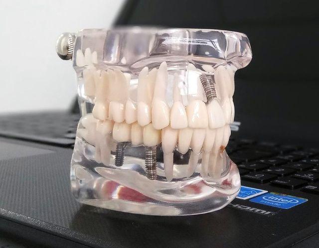 ¿Cuánto cuesta un implante dental en 2021?