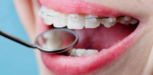 Ile kosztuje aparat na zęby w 2020 roku?